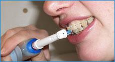 Первая электрическая зубная щетка была изобретена