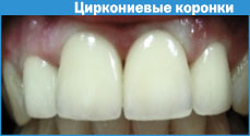 Штифт в зуб оксид циркония