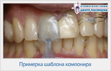 композитные виниры лучшие клиники москвы