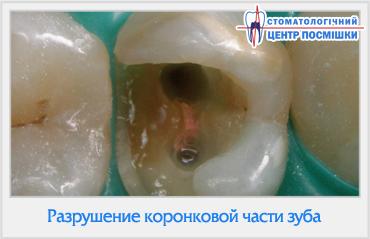 как ставят штифт в зуб фото
