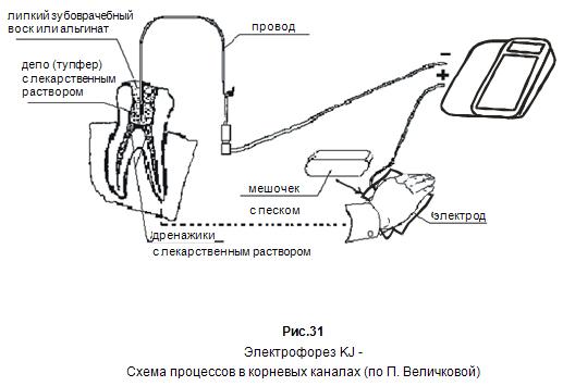 Электрофорез KJ - Схема