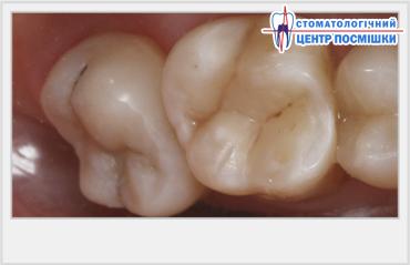 Зуб ноет а в нем мышьяк