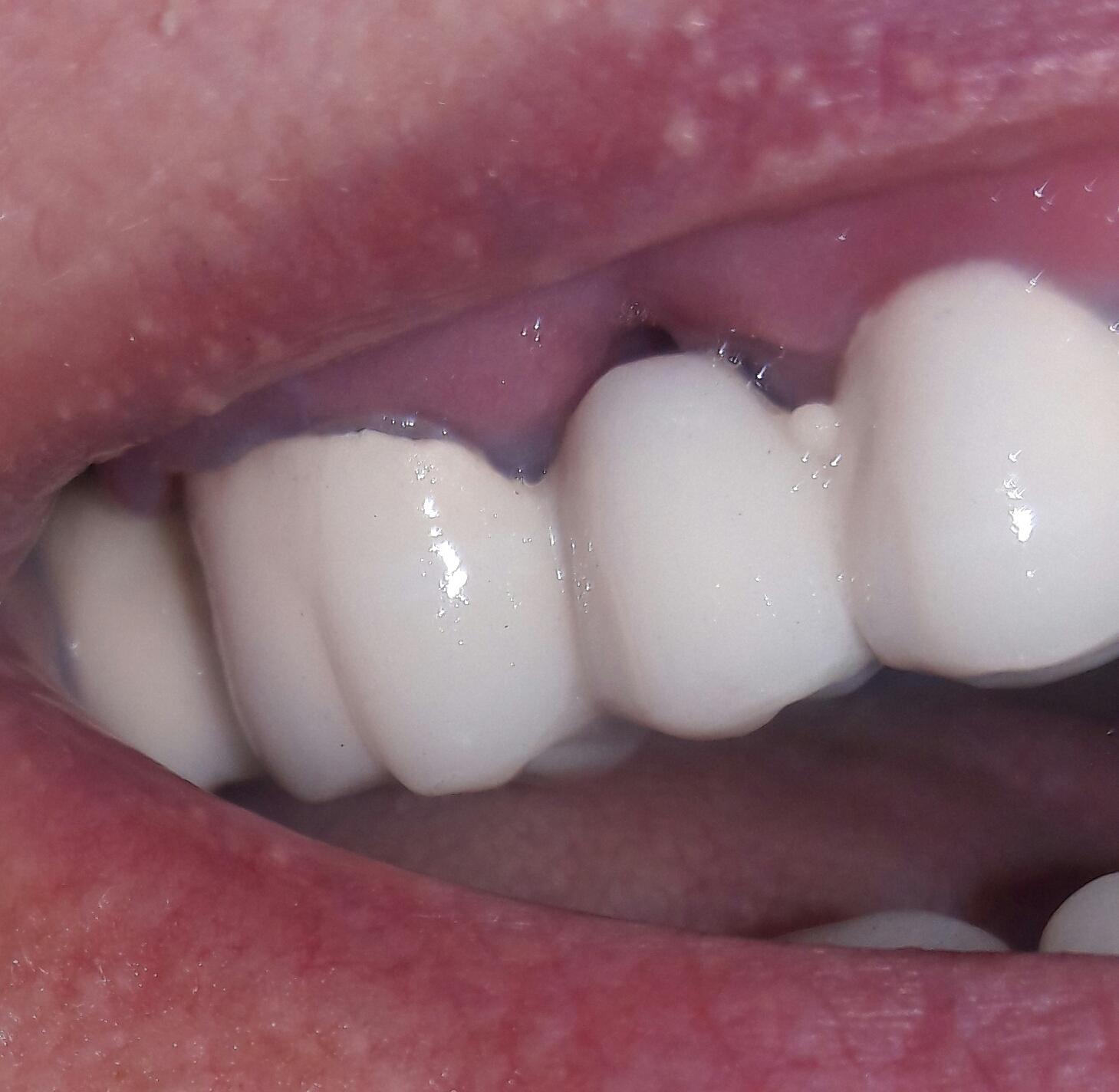Десна заходит на зуб