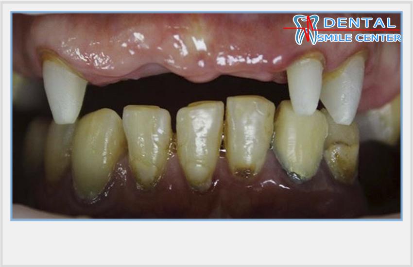 Зубы пахнут под коронками