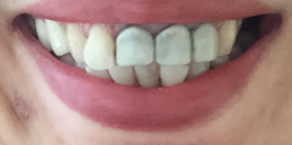 Как снять зуд на зубах