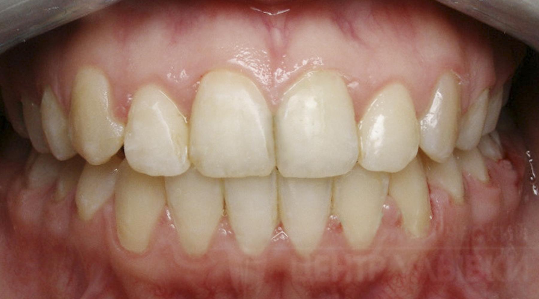 Зуб Сверхкомплектный