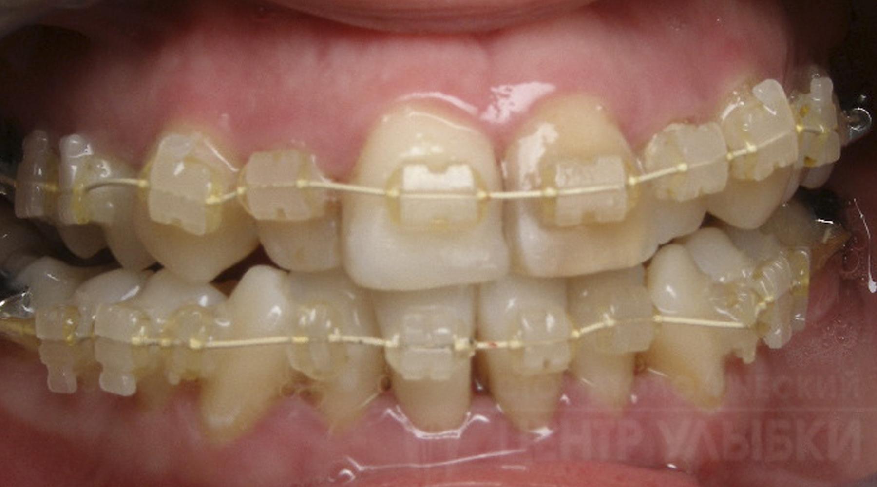 Зуб Сверхкомплектный фото