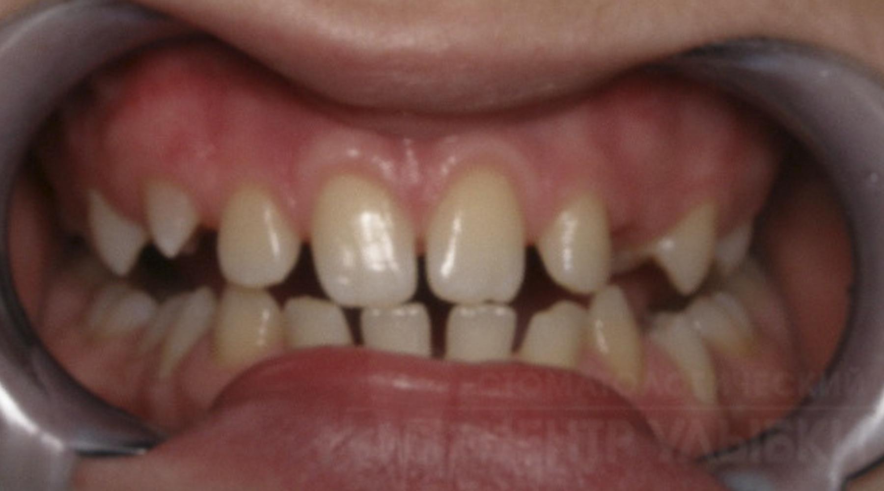 после лечения зуба появился запах изо рта