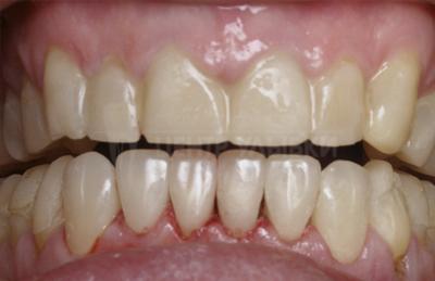 виниры без стоматолога